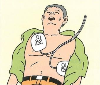 電極パッドを貼り付ける位置